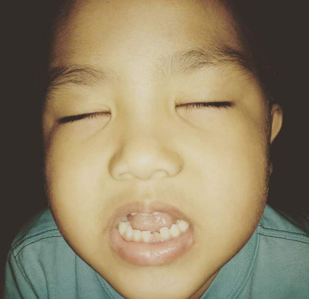 Hello there, 1st Permanent Tooth.